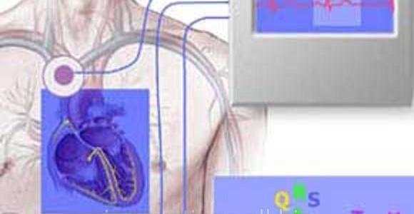 Начало цикла «Клинические аспекты холтеровского мониторирования ЭКГ» 36 часов (НМО) для врачей кардиологов и ФД