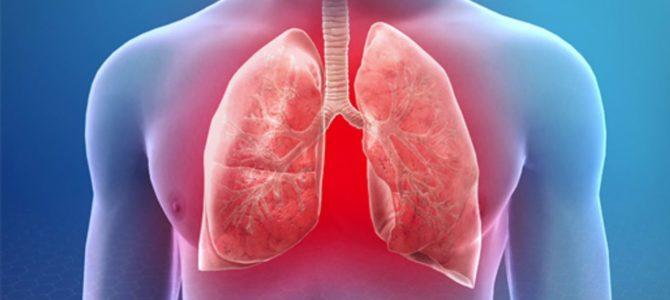 Начало цикла «Инфекционно-воспалительные и неспецифические заболевания легких» 36ч.(НМО)