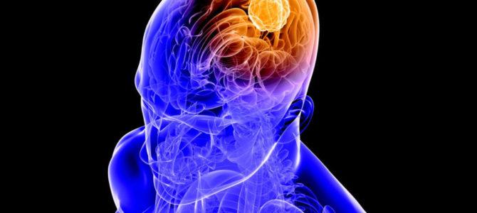 Начало цикла повышения квалификации «Демиелинизирующие заболевания центральной нервной системы» с 06.04.2020 г. 36ч.НМО